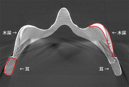 鼻のあたりの断面図(CT画像)